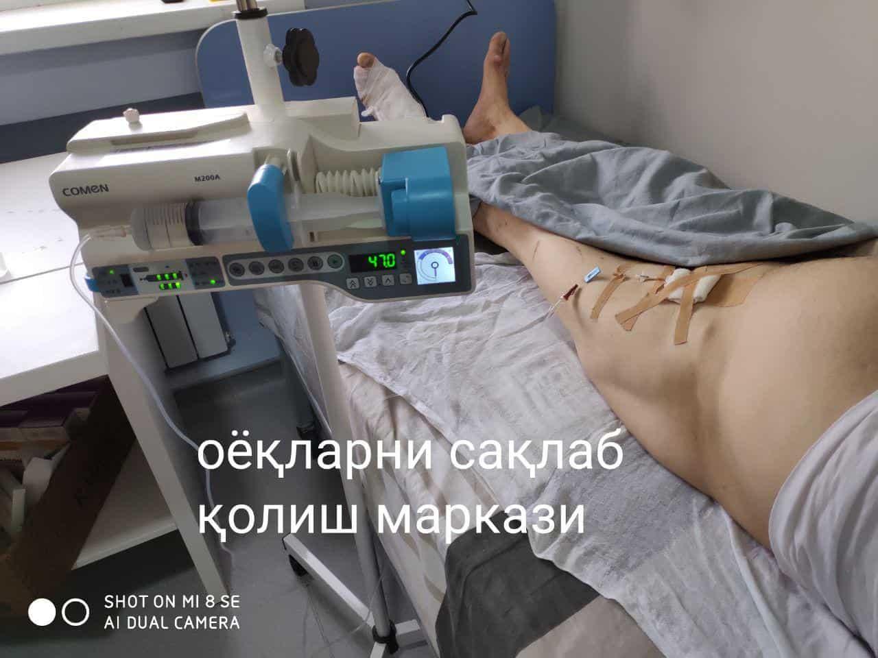 Бу узоқ муддат (3-4 кун)га сон артериясига ўрнатилган катетер (ингичка қувур) орқали кеча кундуз тинмасдан, шприцли дозатор аппарати ёрдамида бажарилади (ДВАКТ)